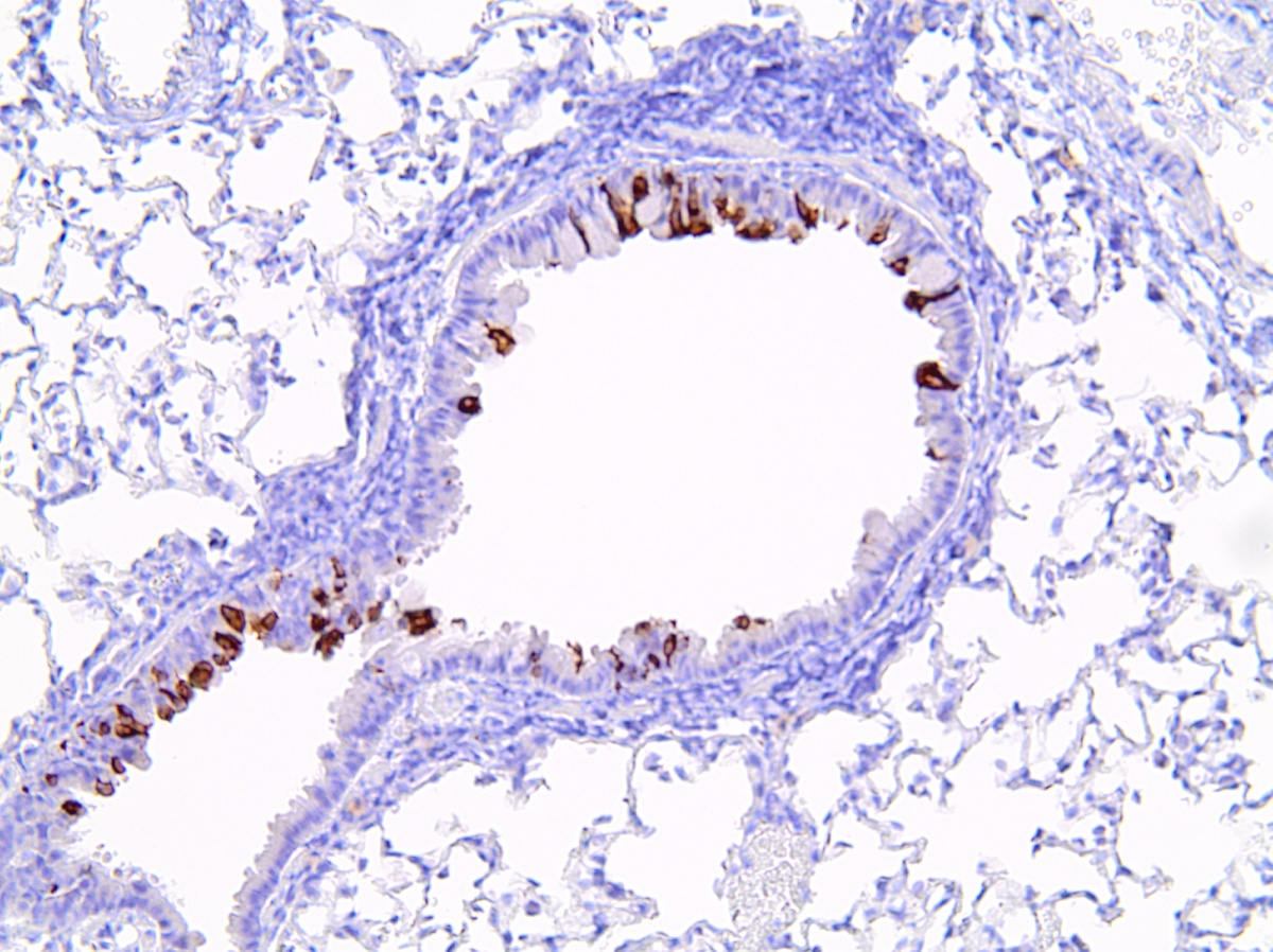 A microscopic view of a cotton rat lung infected with respiratory syncytial virus (the infected cells show in brown).